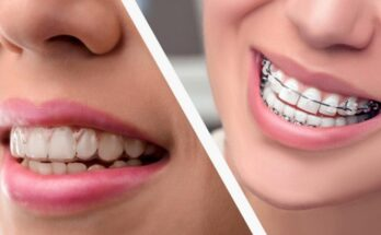 Best Orthodontist Melbourne